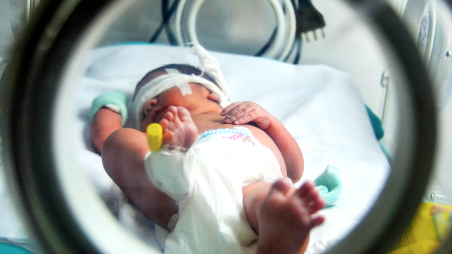 Reducing avoidable death in newborns and children under the age of five